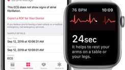 苹果放出watchOS 5.1.2 新增心电图但仅限美国